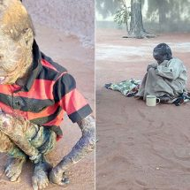 Baby Abshir to be flown to Nairobi due to his crippling skin disease
