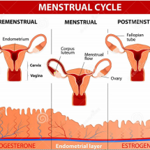 Causes of premenstrual syndrome and its symptoms