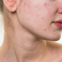 This is what tomatoes can do to your skin