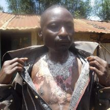 Woman takes hot water to bar, pours it on lover after suspecting cheating